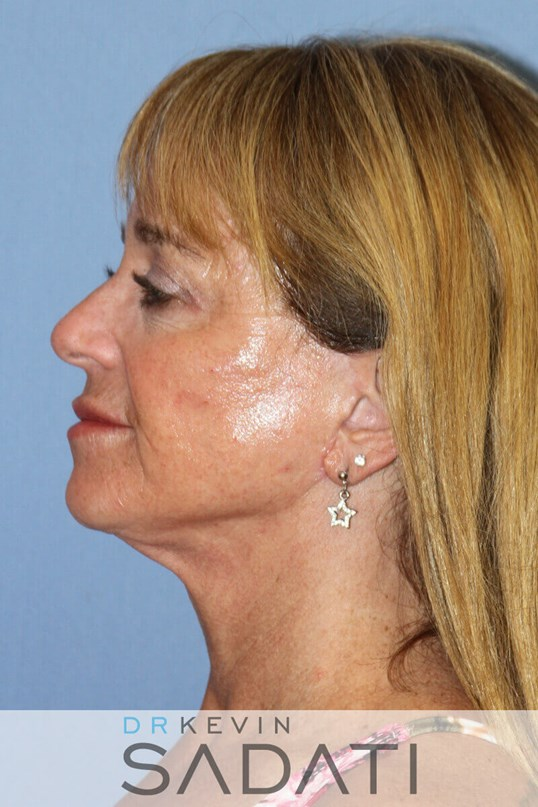 Huntington Beach Neck lift Female Facelift After Surgery