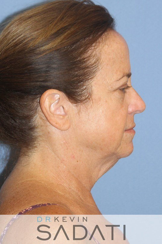 Huntington Beach laser resurfa Female Facelift Before Surgery