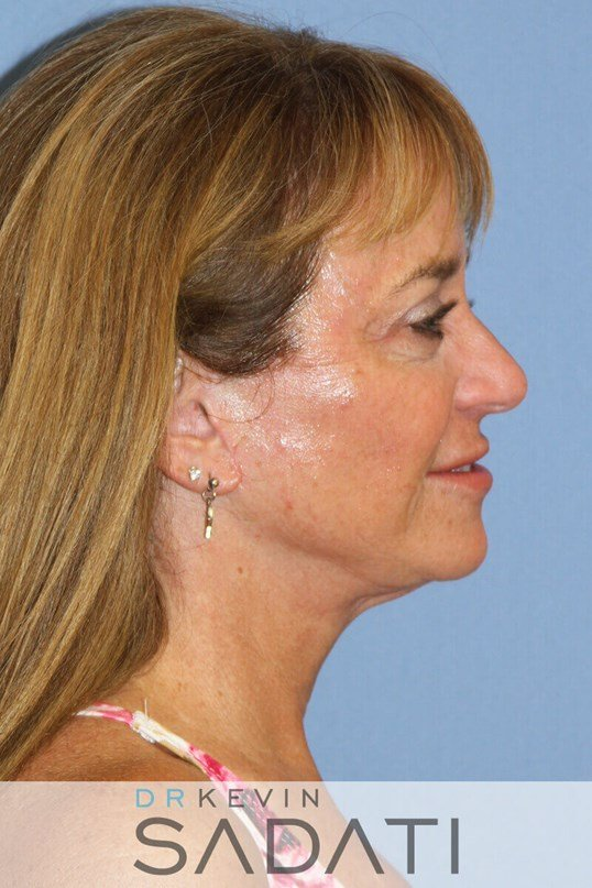 Huntington Beach laser resurfa Female Facelift After Surgery