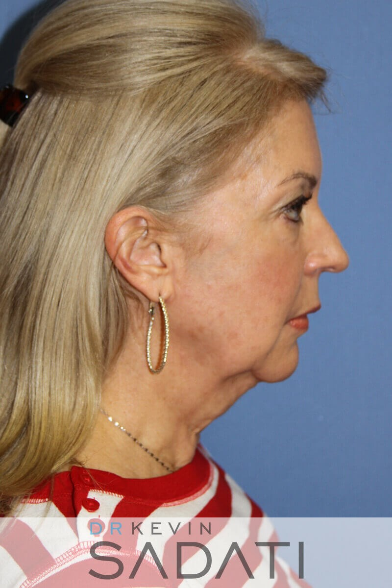 Neck lift Las vegas Nevada Before Facelift