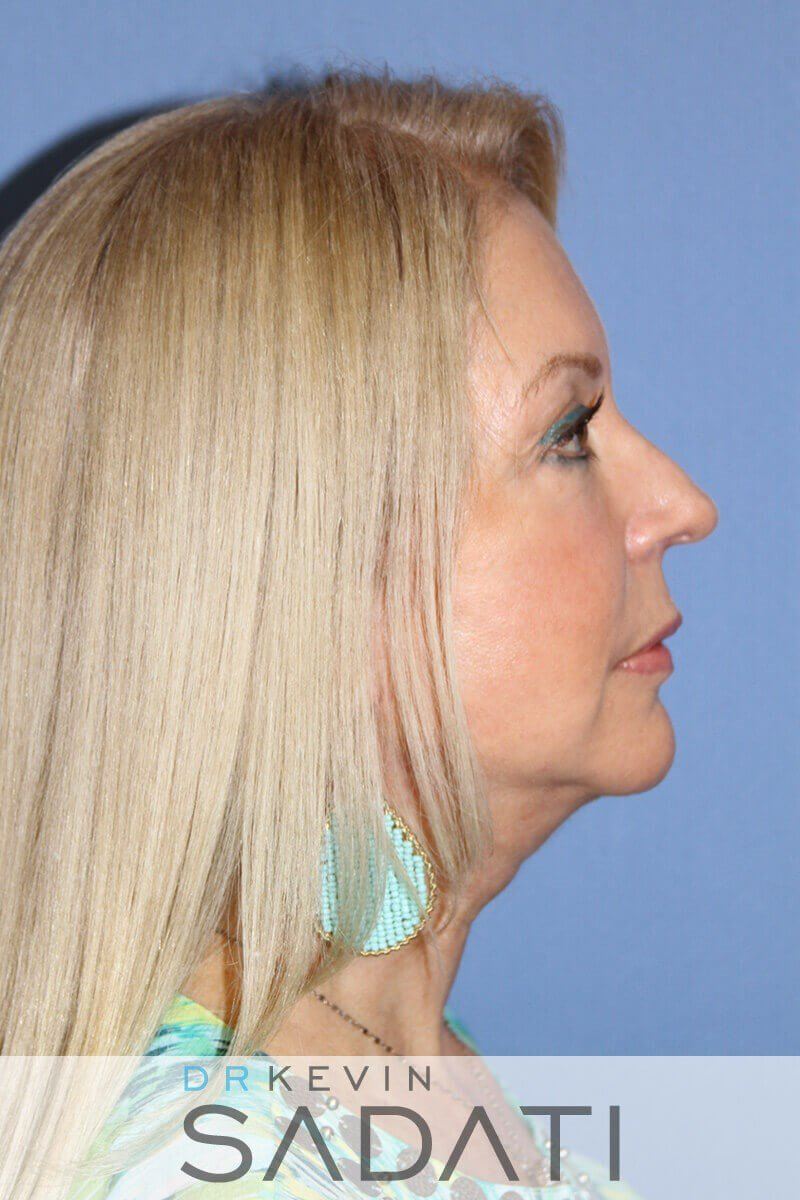 Neck lift Las vegas Nevada After Facelift