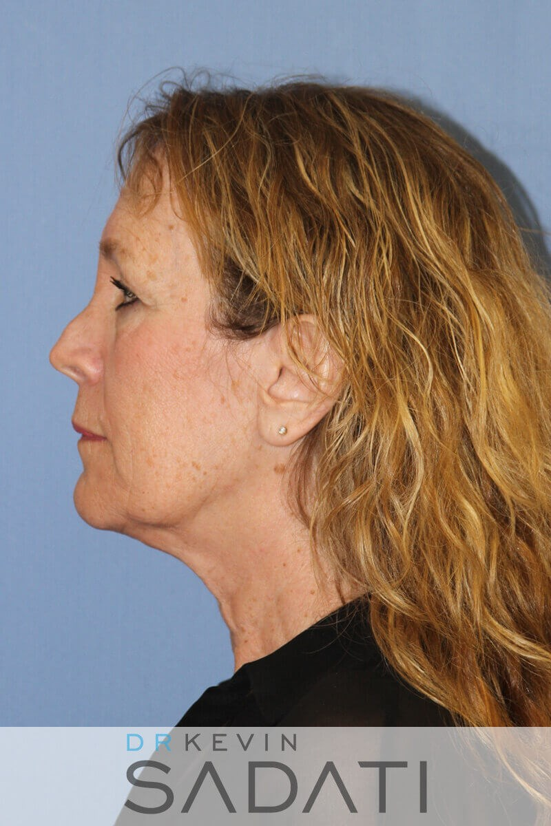 Orange County Female Facelift Before Facelift Procedure