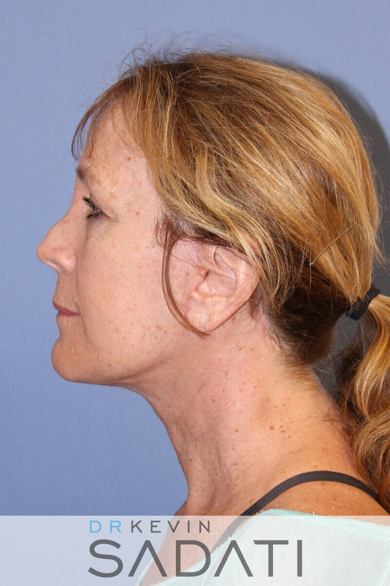 Orange County Female Facelift After  Facelift Procedure
