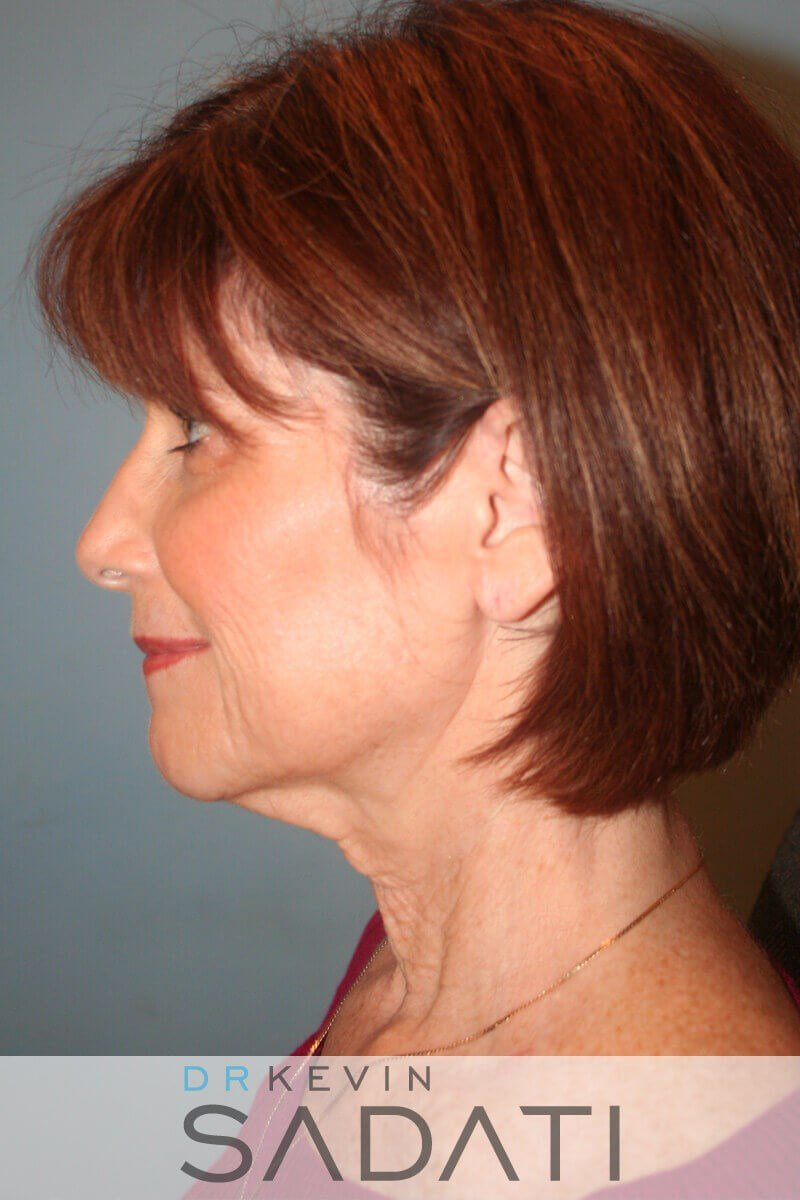Newport Beach Female Neck Lift Before Surgery