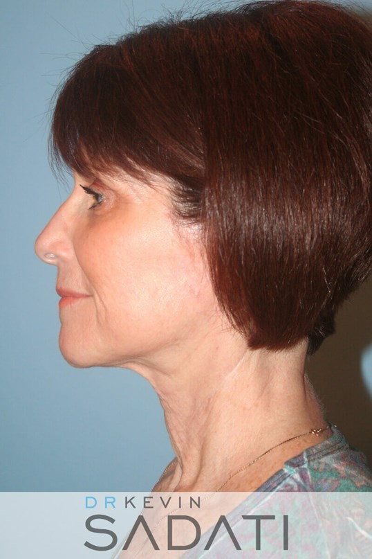 Newport Beach Female Neck Lift After Surgery