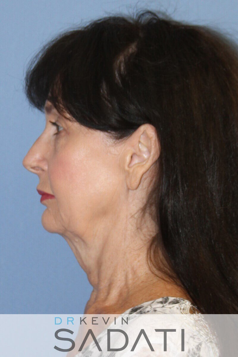 Natural Facelift Newport Beach Before Facelift Surgery