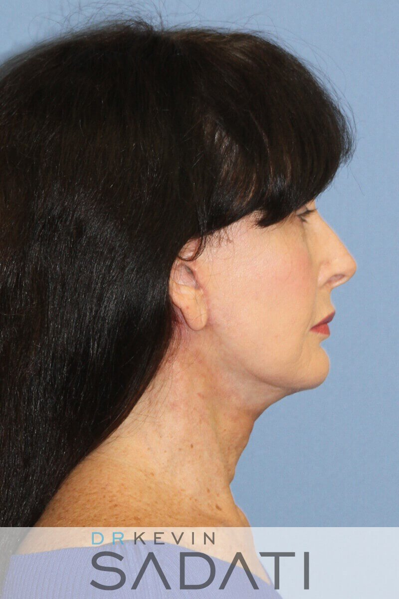 Natural Facelift Newport Beach After Facelift Surgery