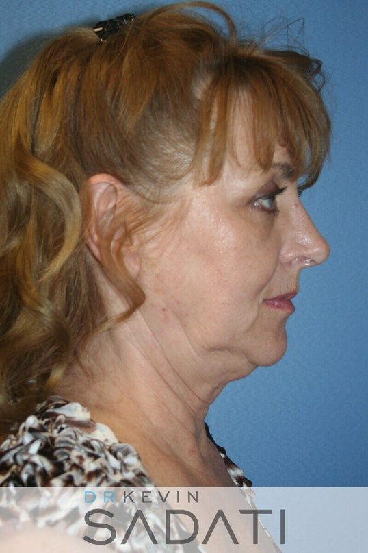 neck lift los angeles Before Facelift