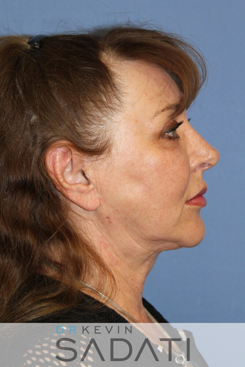neck lift los angeles After Facelift