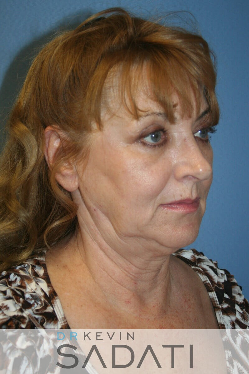 Female fat grafting Newport Be Before Facelift