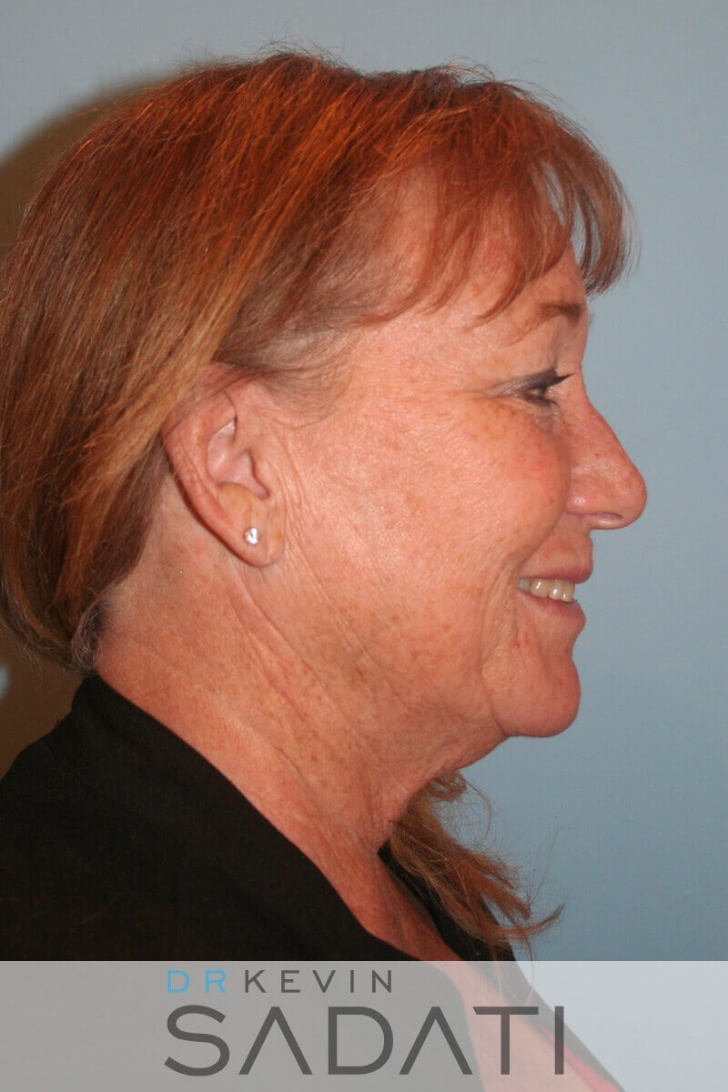 Lower Face and Neck Lift Before Facelift Surgery
