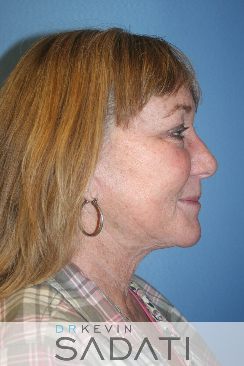 Lower Face and Neck Lift After Facelift Sugery