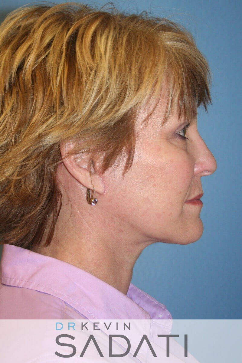 Newport Beach Female Facelift After Facelift Surgery