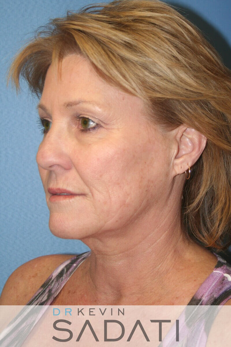 Newport Beach Female Facelift Before Facelift Surgery