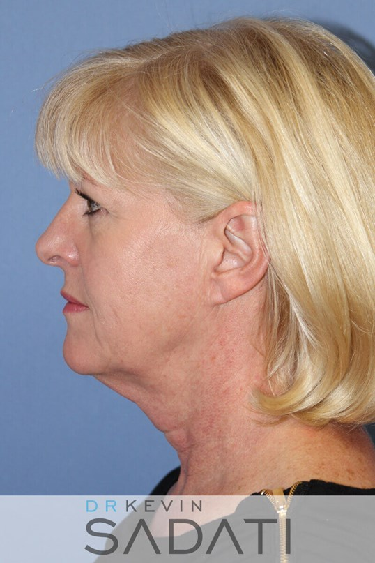 palm desert fat grafting Before Facelift Surgery
