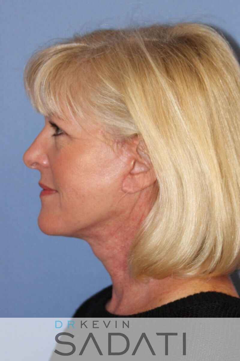 palm desert fat grafting After Facelift Surgery