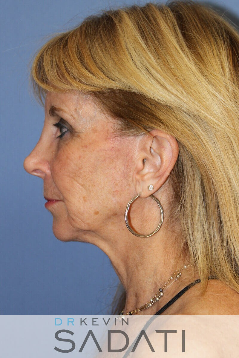 Female Facial Fat Grafting Before Fat Grafting