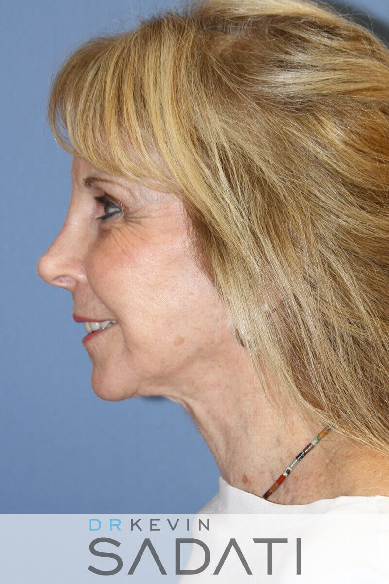 Female Facial Fat Grafting After Fat Grafting
