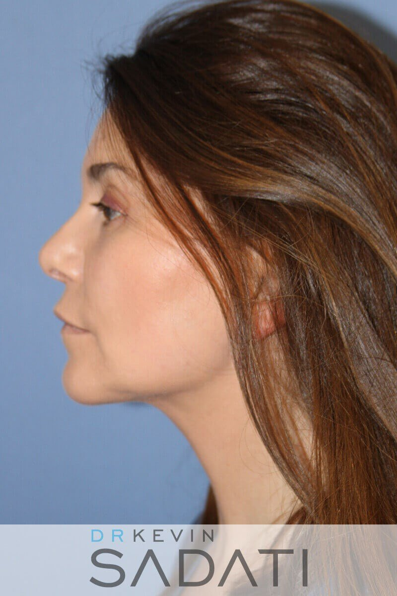 Chin Augmentation with Implant After Chin Augmentation