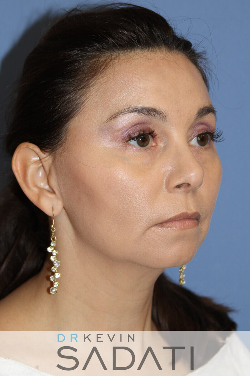 Chin Augmentation with Implant Before Chin Augmentation