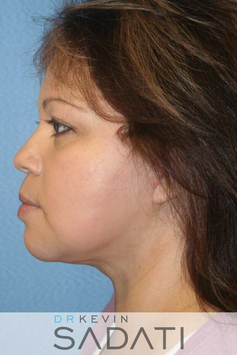 Facelift Before and After After Left View