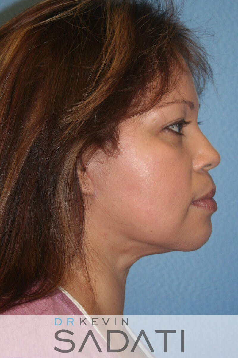 Facelift Before and After After Right View