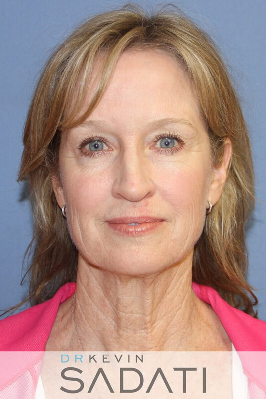 Beverly Hills Facelift Results Before Facial Rejuvenation