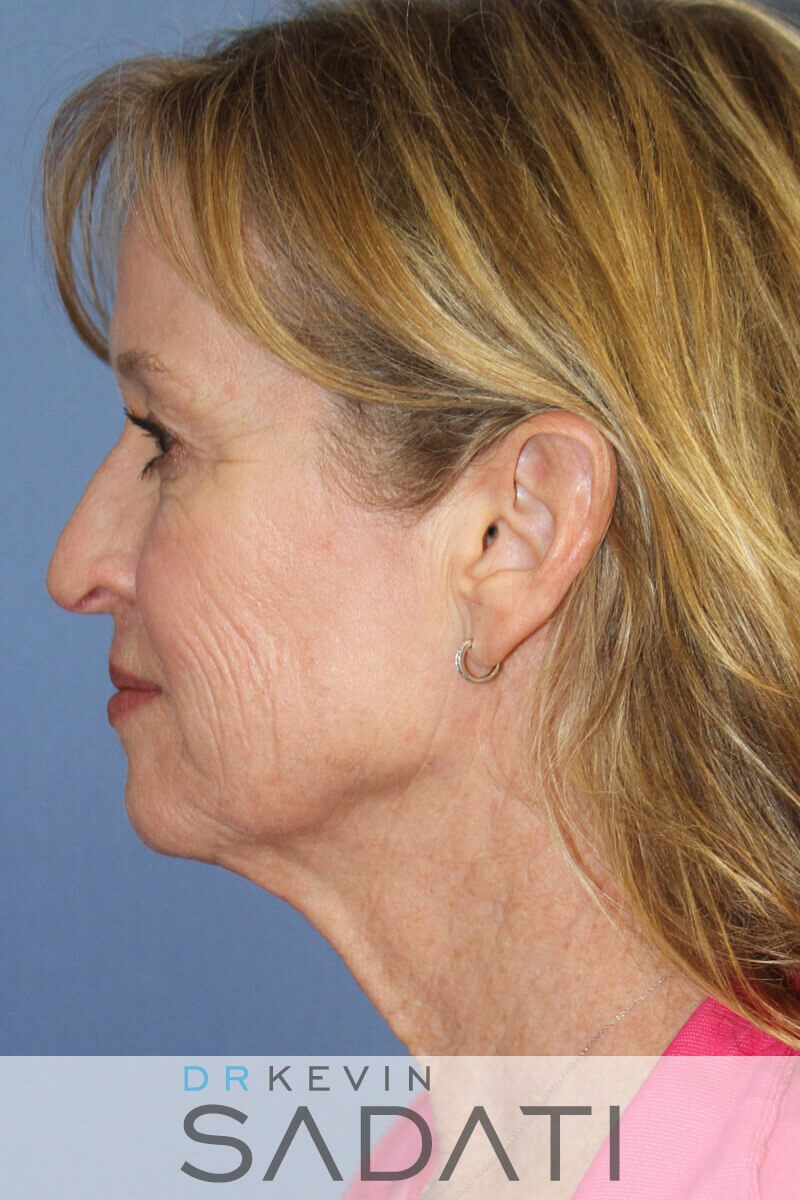 Beverly Hills  Neck lift Before Facial Rejuvenation