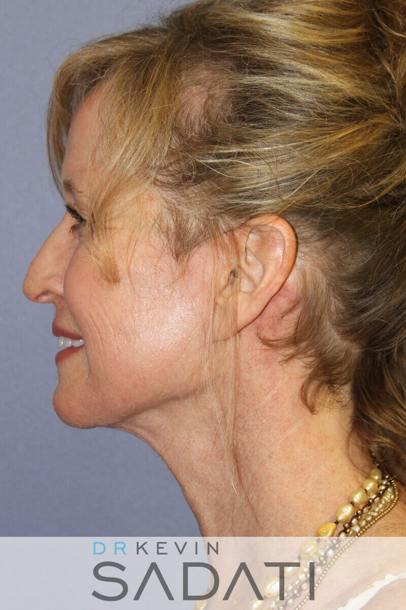 Beverly Hills  Neck lift After Facial Rejuvenation