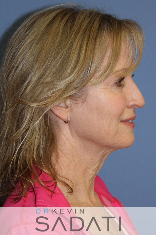 Beverly Hills lower  Facelift  Before Facial Rejuvenation
