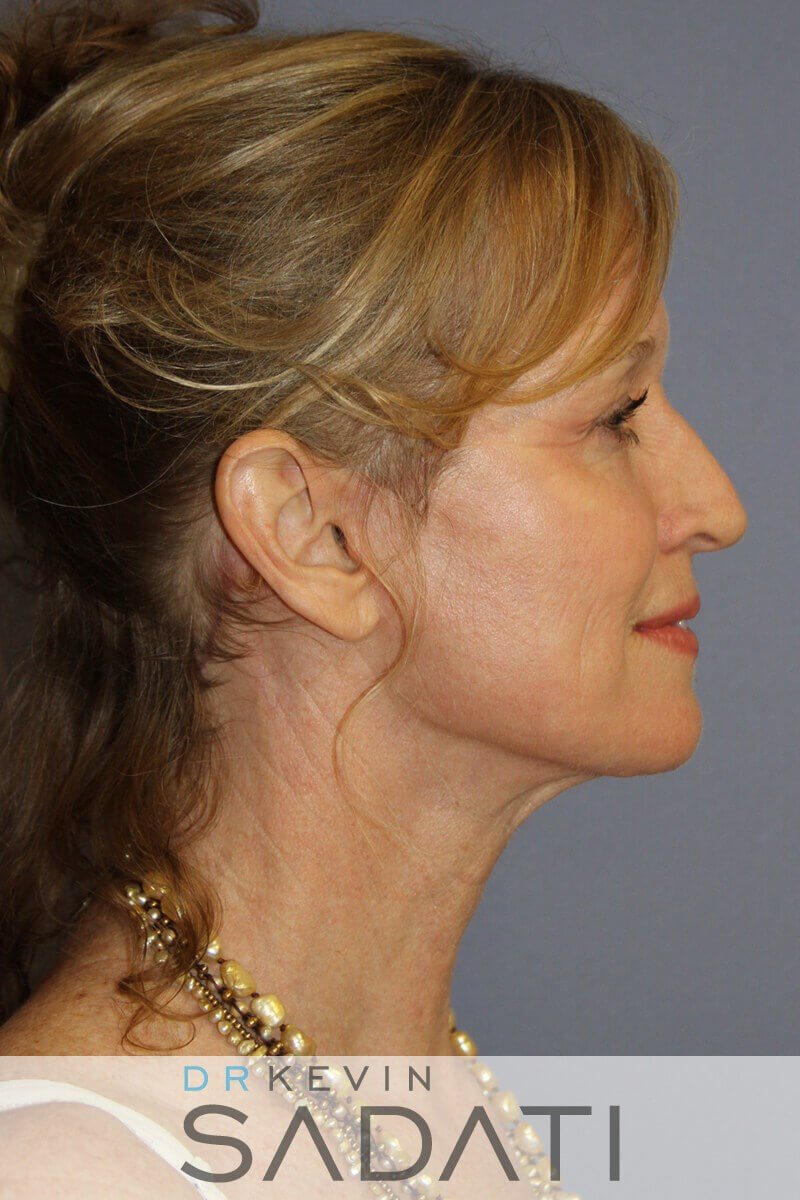 Beverly Hills lower  Facelift  After Facial Rejuvenation