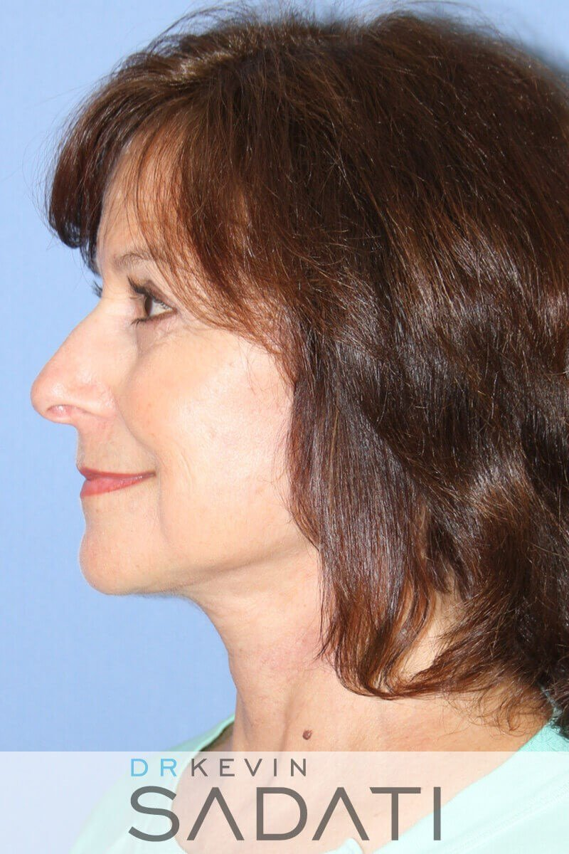 Lower Face and Neck Lift After Facelift Surgery