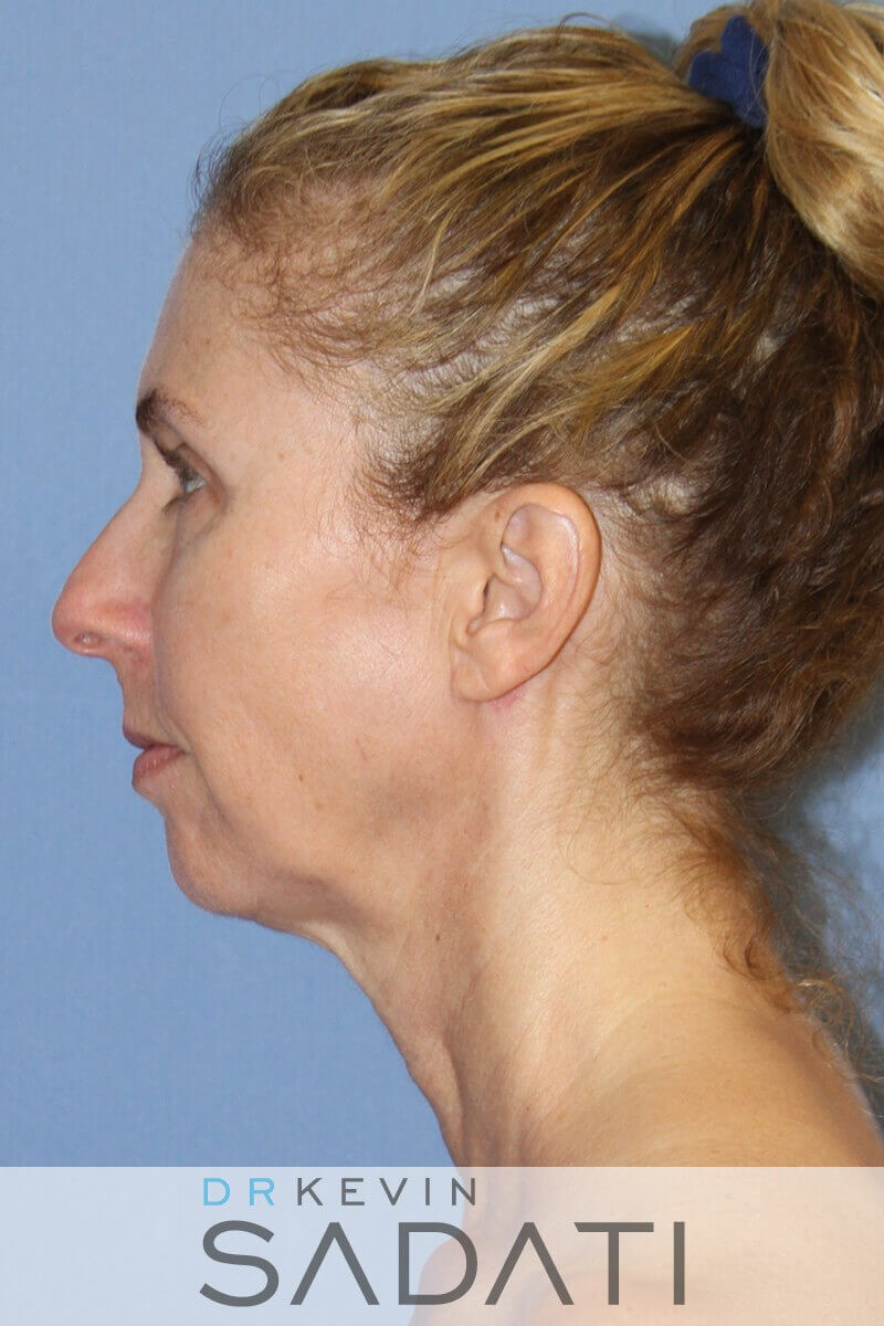 Orange County Chin Implants Before Chin Implant & Facelift