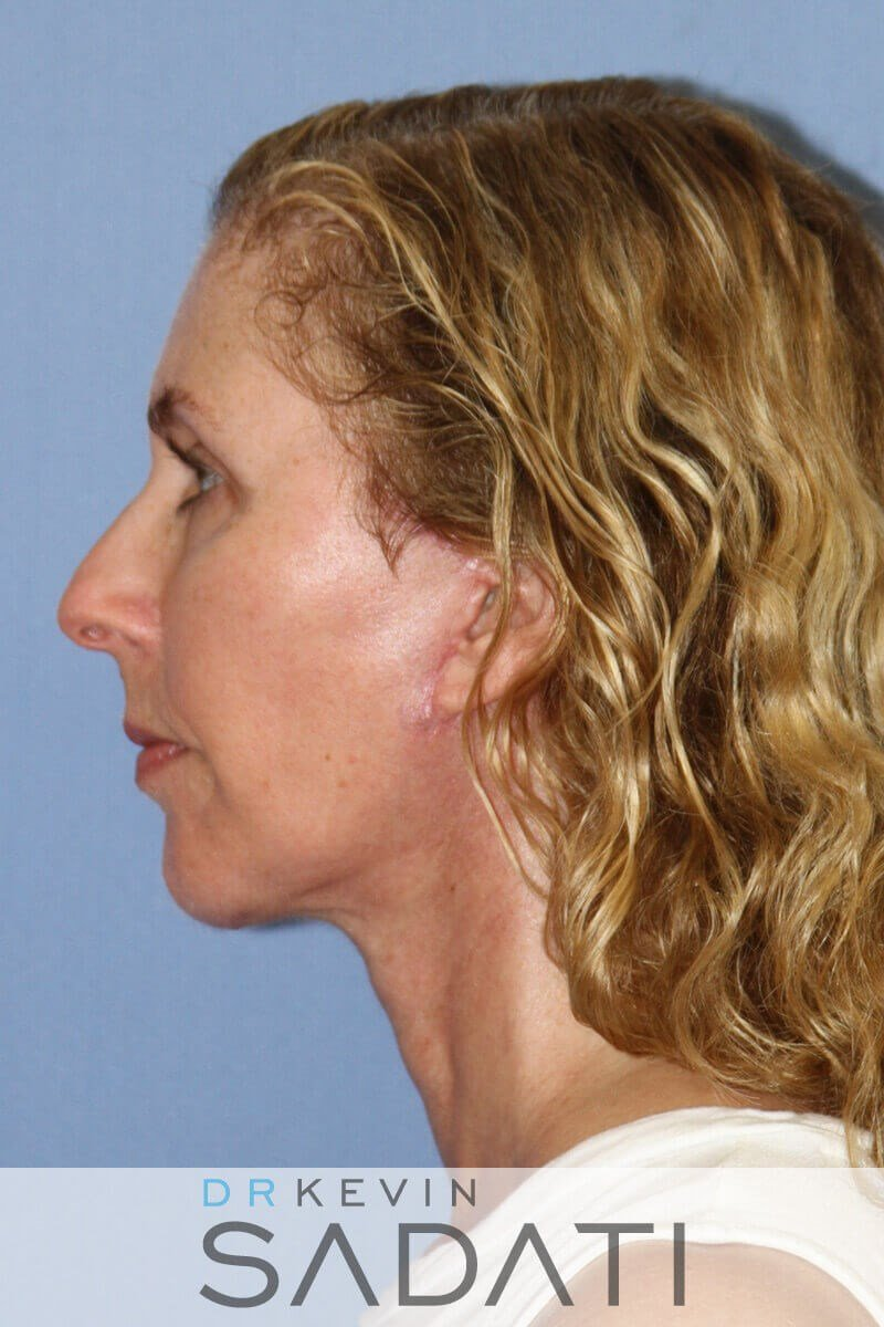 Orange County Chin Implants After Chin Implant & Facelif