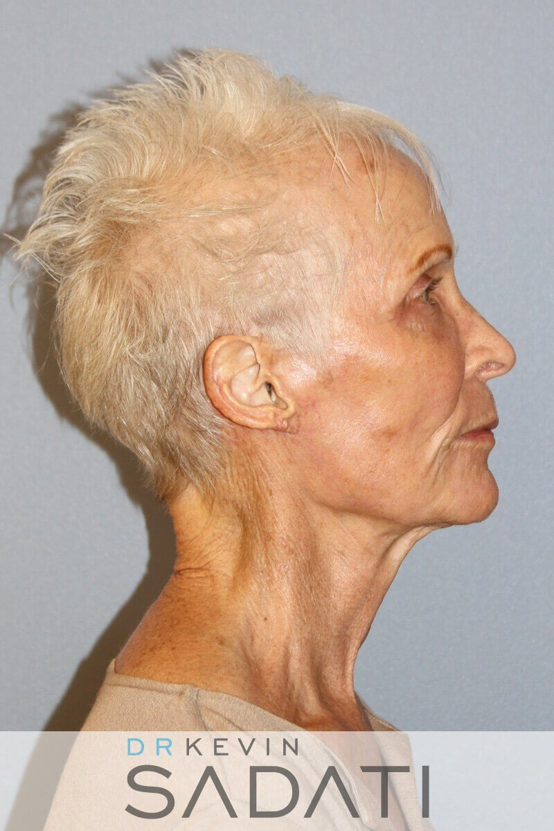 Female Facelift Before & After After Facelift Surgery
