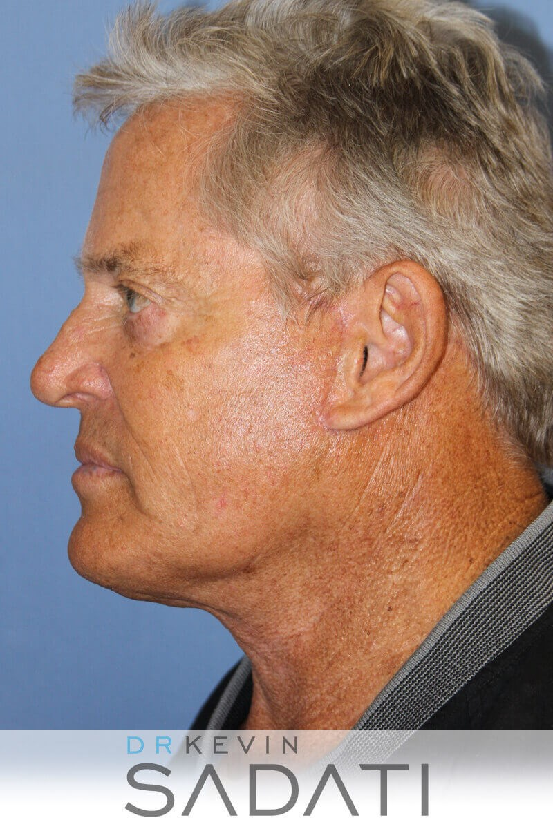 Male Facelift Before and After Male Facelift After