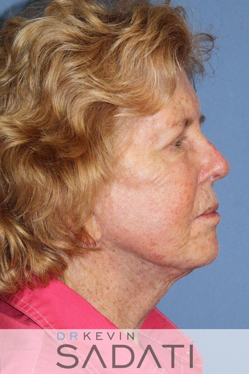 Facelift by Dr. Kevin Sadati After
