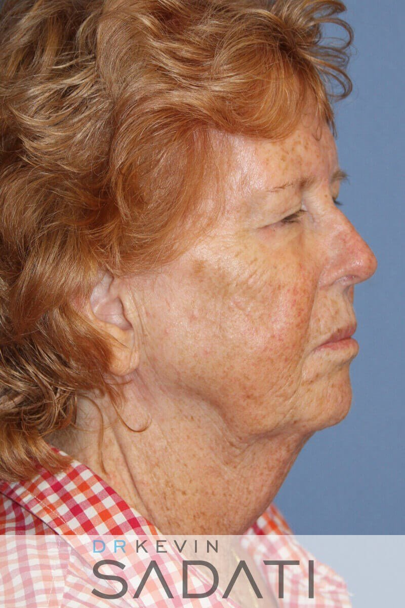 Facelift by Dr. Kevin Sadati Before