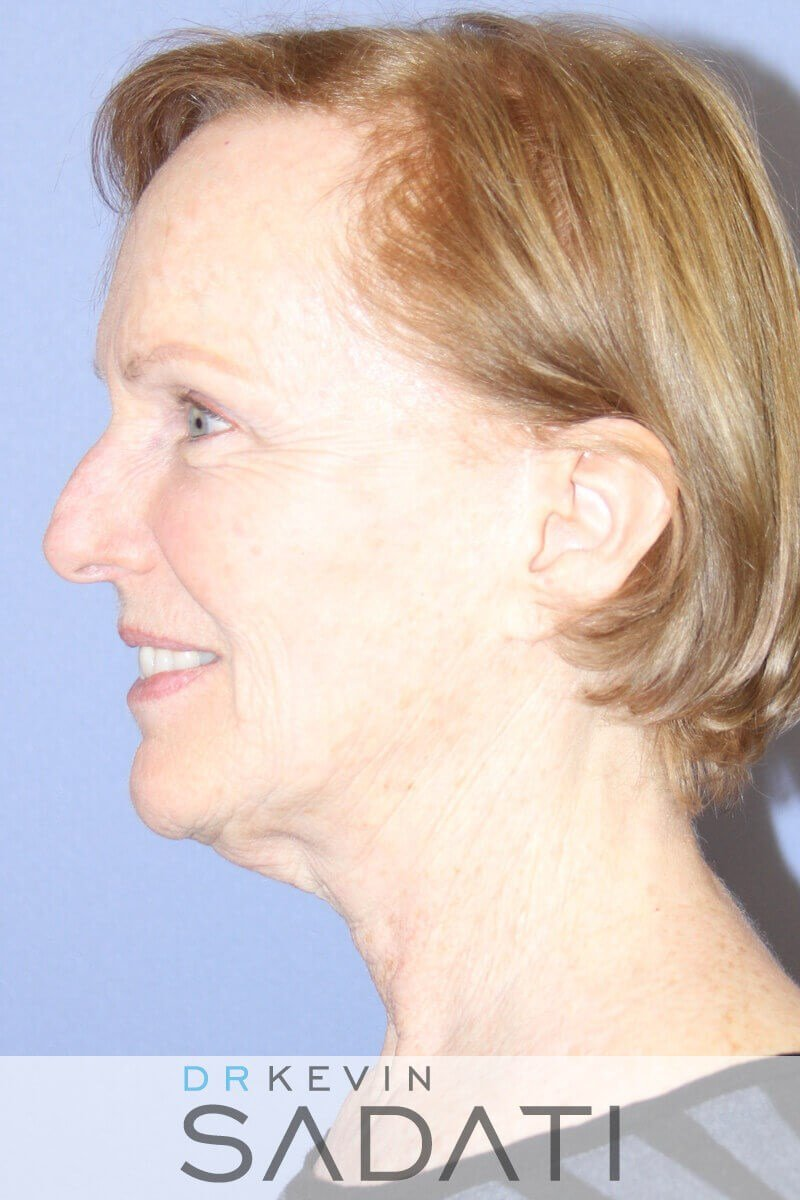 Facelift Surgery Photos Before