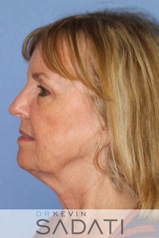 Female Facelift Newport Beach Before Facelift
