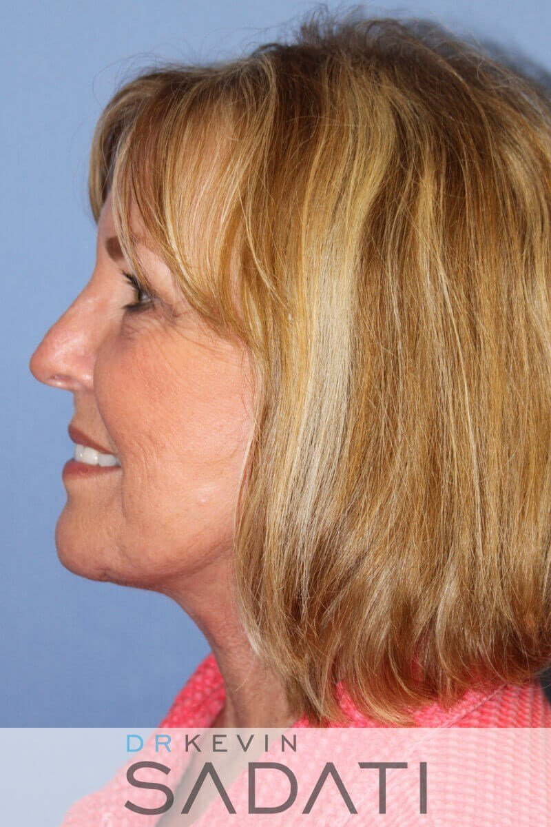 Female Facelift Newport Beach After Facelift