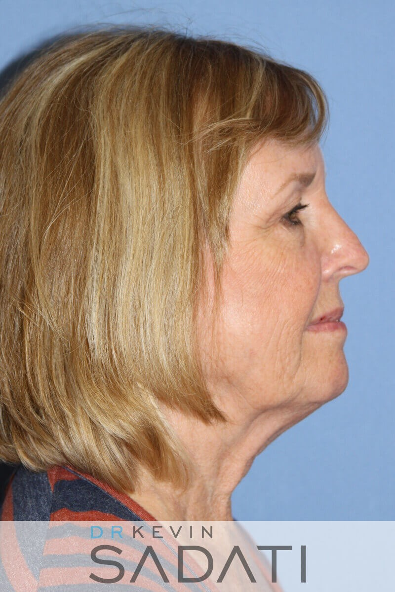 Female Facelift Before & After Before Facelift
