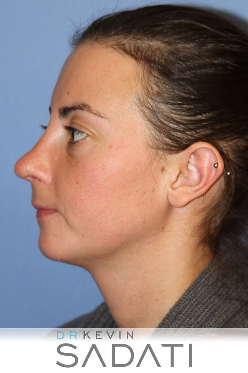 Female Rhinoplasty After Rhinoplasty