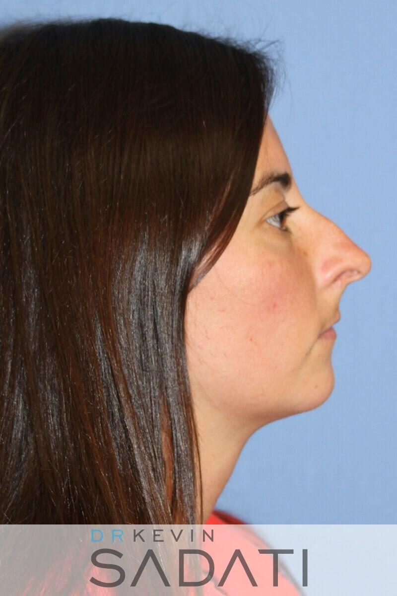 Female Rhinoplasty Before Rhinoplasty