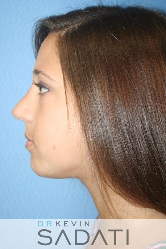 Teenage Revision Rhinoplasty Before