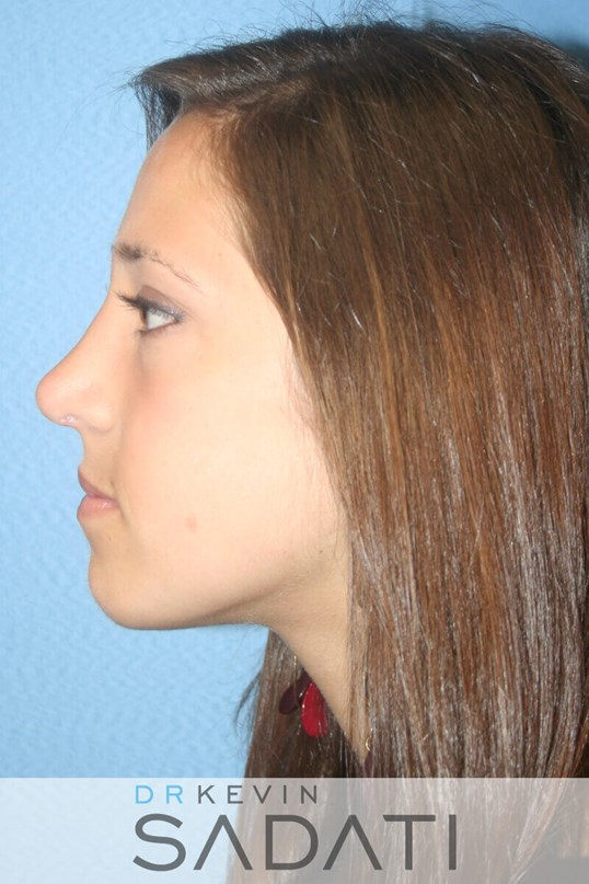 Teenage Revision Rhinoplasty After
