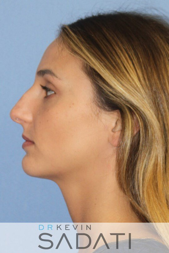 Newport Beach Rhinoplasty Before