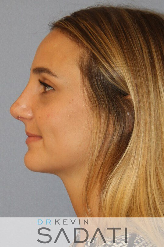 Newport Beach Rhinoplasty After