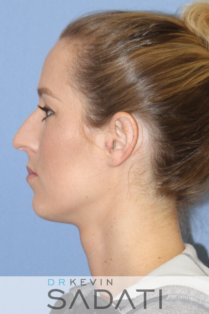 Rhinoplasty Left Side View Before
