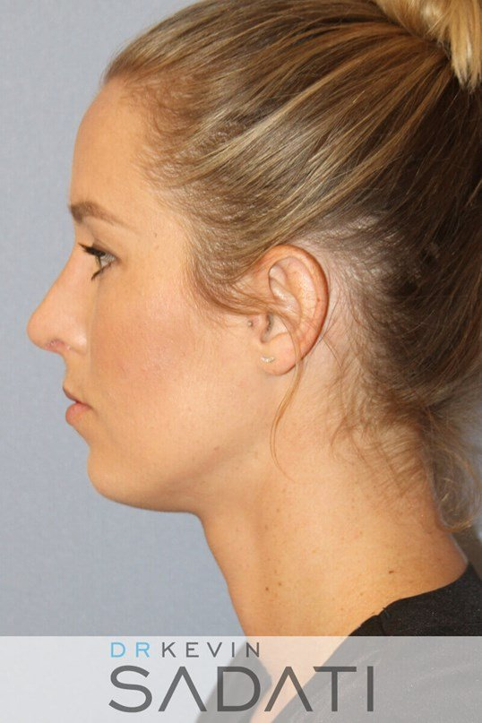 Rhinoplasty Left Side View After